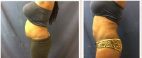 Tracey T. after 4 treatments
